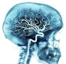 Beyin Damarları Da Tıkanır - Alzheimer Hastalığı