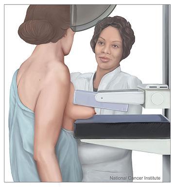 Mamografi Meme Kanseri Yapar Mı?