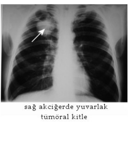 Akciğer Kanserinde Erken Teşhis